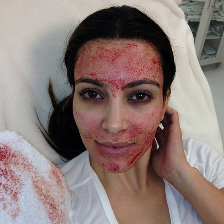 Kim kardashian blood face vampire facial facelift